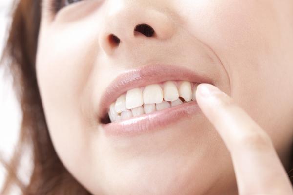 歯を白くして、自信のある美しい笑顔を